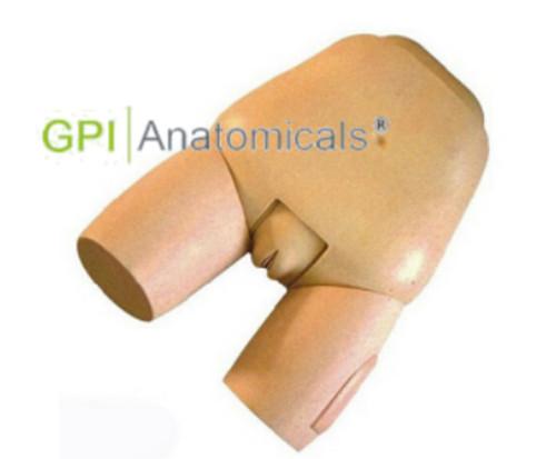 GPI/F31高级子宫底检查评定模型
