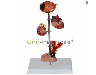 GPI/A16015糖尿病病理模型