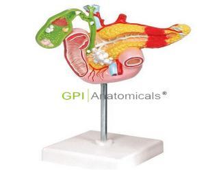 GPI/A12005病理模型胰腺模型,十二指肠和胆囊模型