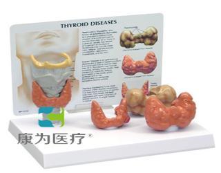 GPIANTOMICALS 甲状腺带软骨、气管模型