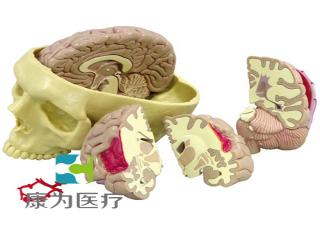 GPIANTOMICALS 脑动脉病理切片模型