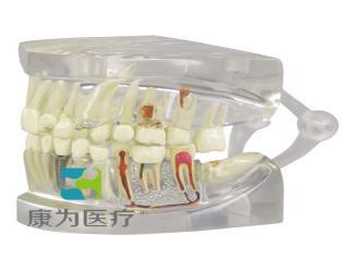 GPIANTOMICALS 透明下颌模型