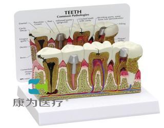 GPIANTOMICALS 前磨牙和臼齿放大模型